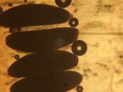 Genetische muggen moeten Zika bestrijden